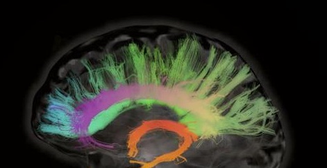 mulit-colored brain image